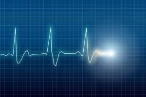 heartbeat-monitor